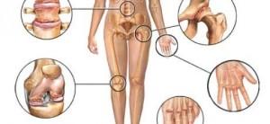 Převratné! Bolestí kloubů vás zbaví biologická léčba! - Proženy